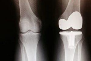 Vida útil de un implante de rodilla