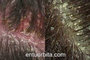 Cómo solucionar la resequedad del cuero cabelludo