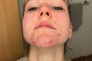Cómo tratar el acné homonal